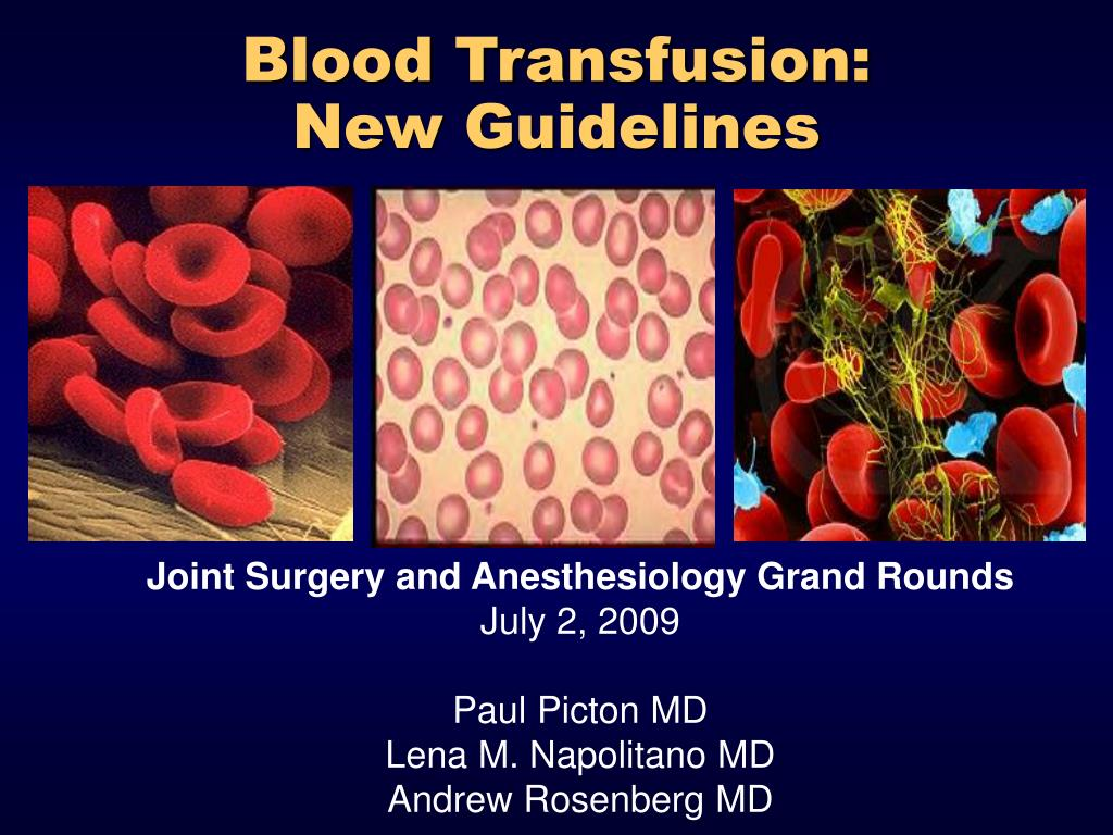blood transfusion new guidelines l.