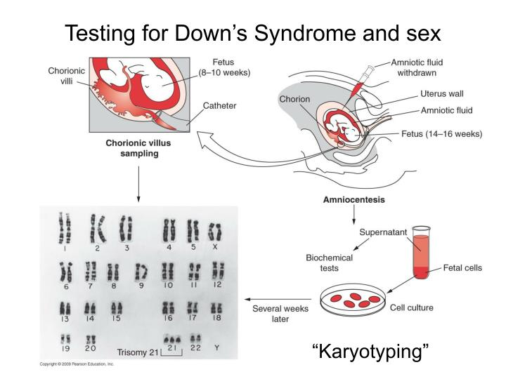 Testing for down s syndrome and sex
