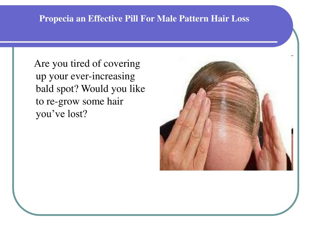 propecia an effective pill for male pattern hair loss l.