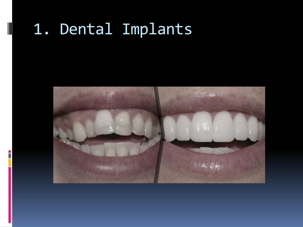 1. Dental Implants