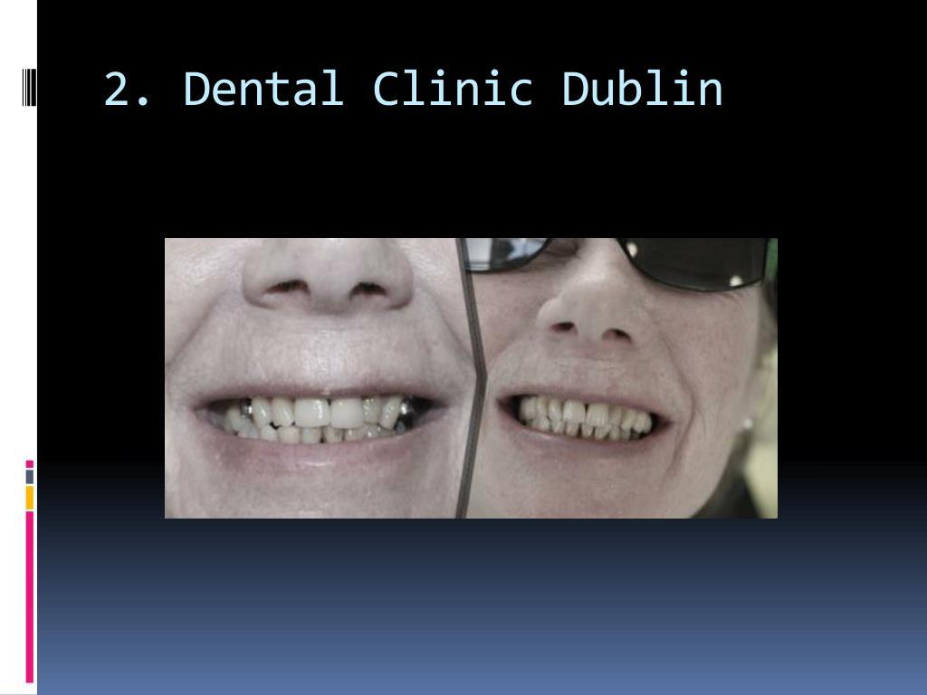 2. Dental Clinic Dublin