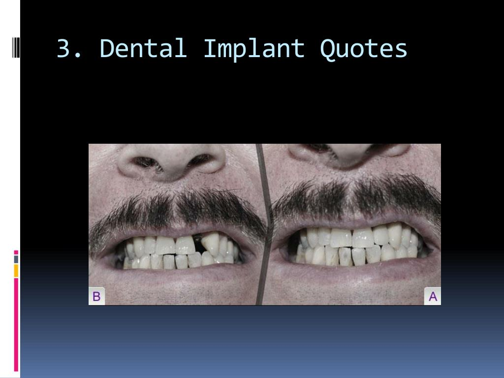 3. Dental Implant Quotes