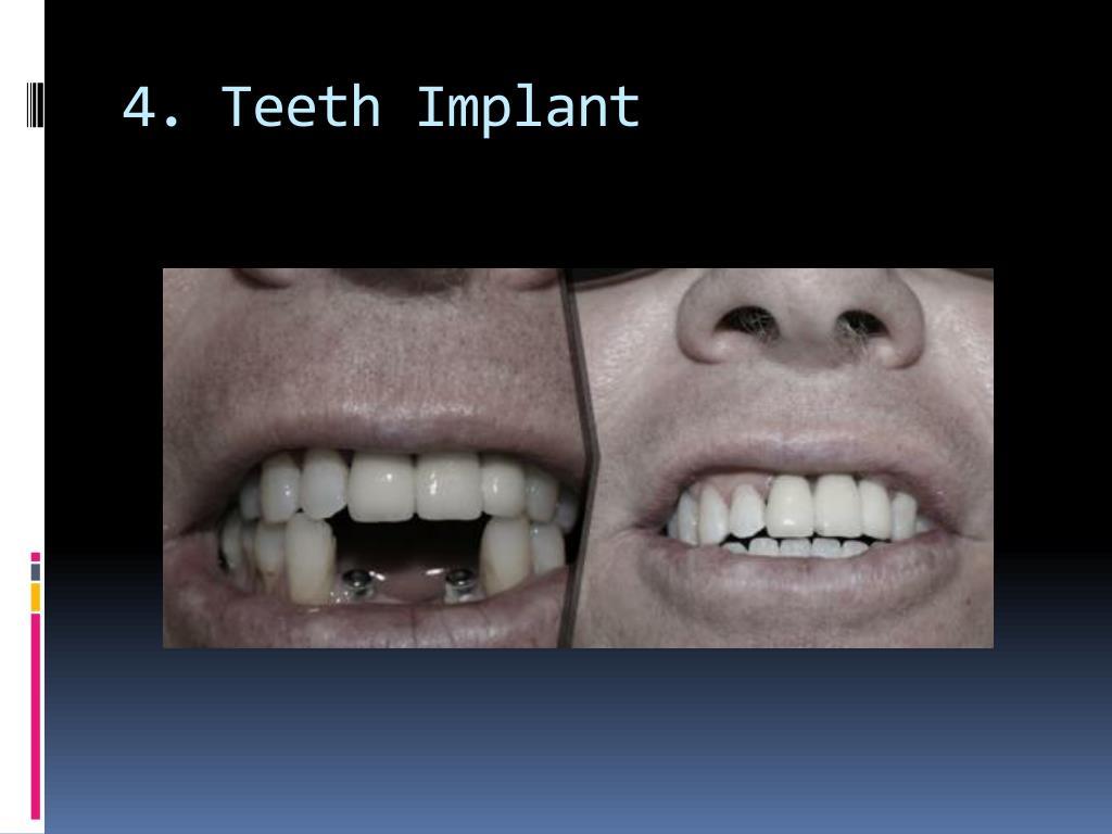 4. Teeth Implant