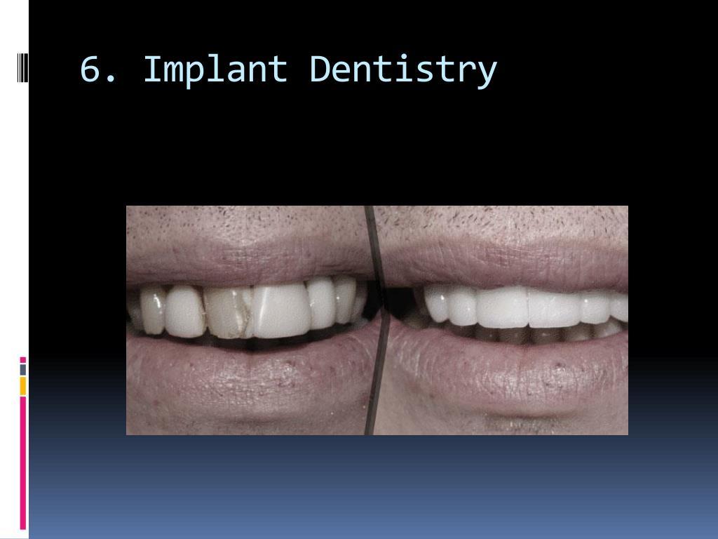 6. Implant Dentistry