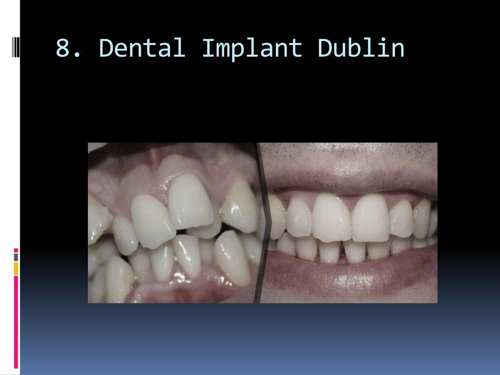 8. Dental Implant Dublin
