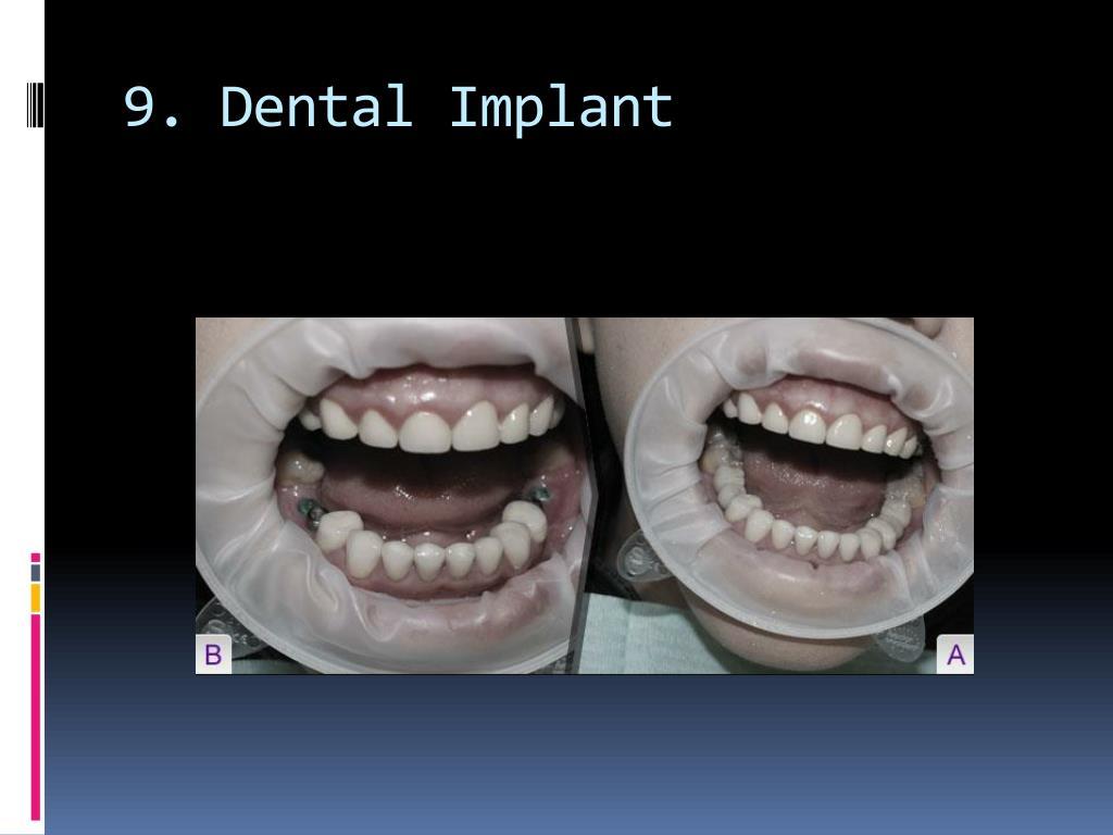 9. Dental Implant