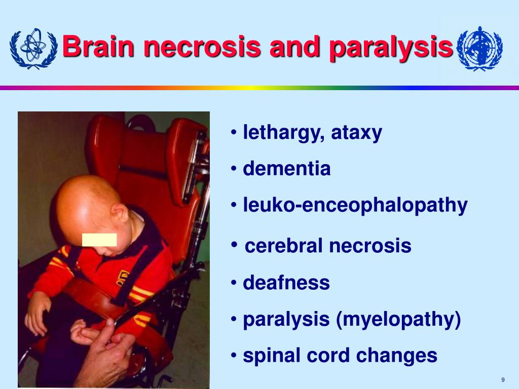 Brain necrosis and paralysis