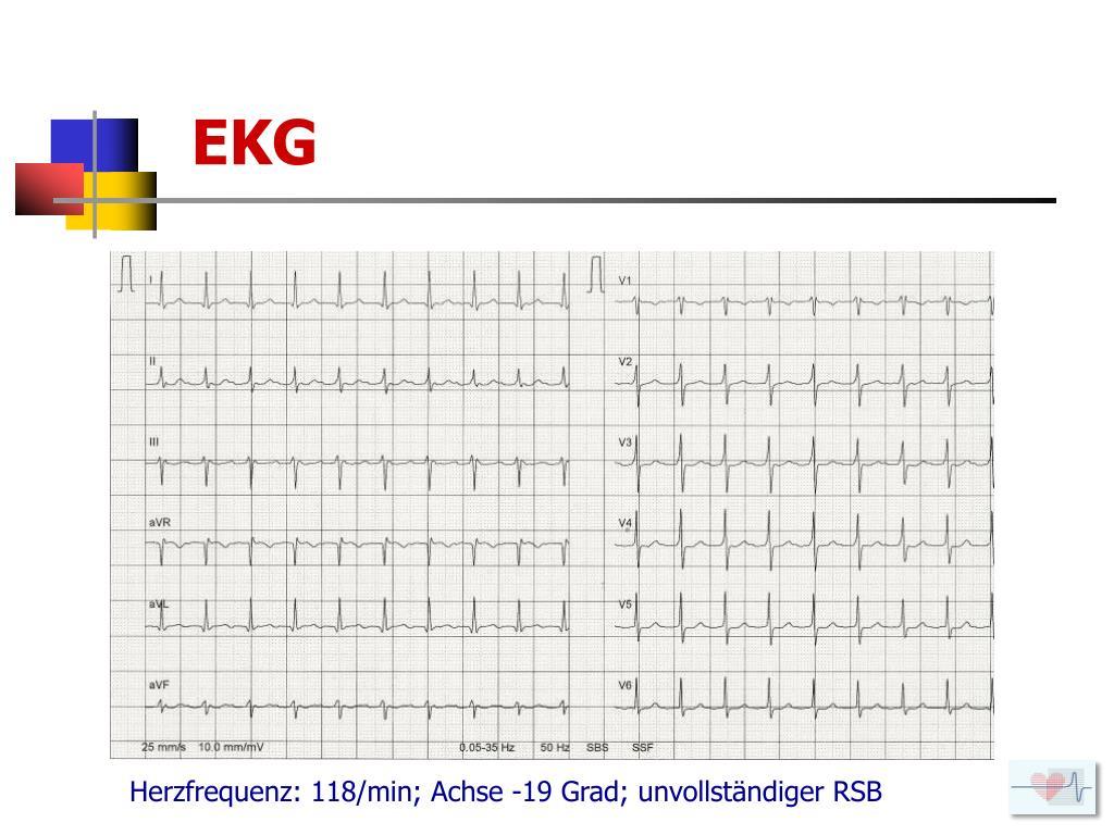 PPT - Kardiologische Fälle 2011 aus der Praxis für die..