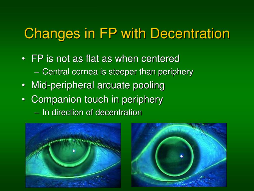 PPT - Fluorescein Patterns PowerPoint Presentation - ID:510009