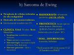b sarcoma de ewing