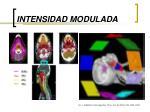 intensidad modulada42