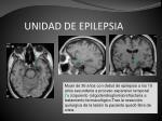 unidad de epilepsia39