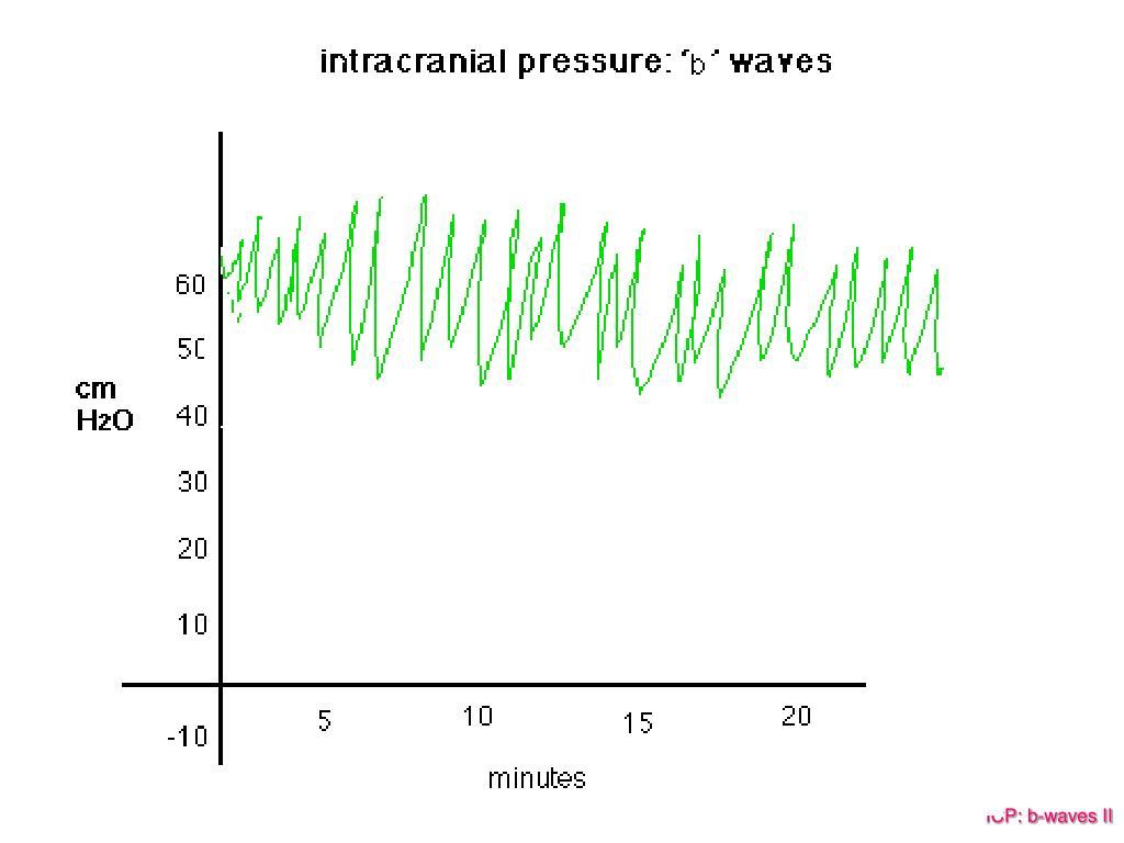 ICP: b-waves II
