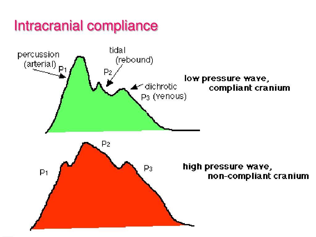Intracranial compliance