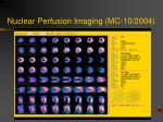 nuclear perfusion imaging mc 10 2004