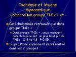 isch mie et l sions myocardique comparaison groupe tnic et19