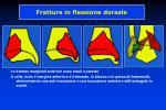 fratture in flessione dorsale43