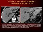 figura 10 patolog a tumoral colangioca intraductal