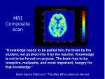 mri composite scan
