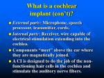 what is a cochlear implant con t