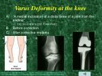 varus deformity at the knee