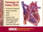 tetralogy of fallot tof