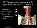 17 the deep posterior muscle to the right side of the cervical vertebrae is