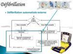 d fibrillation