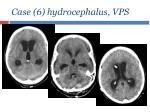 case 6 hydrocephalus vps