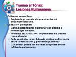 trauma al t rax lesiones pulmonares