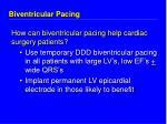 biventricular pacing20