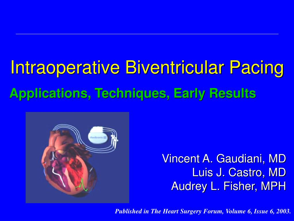 intraoperative biventricular pacing l.