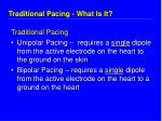 traditional pacing what is it