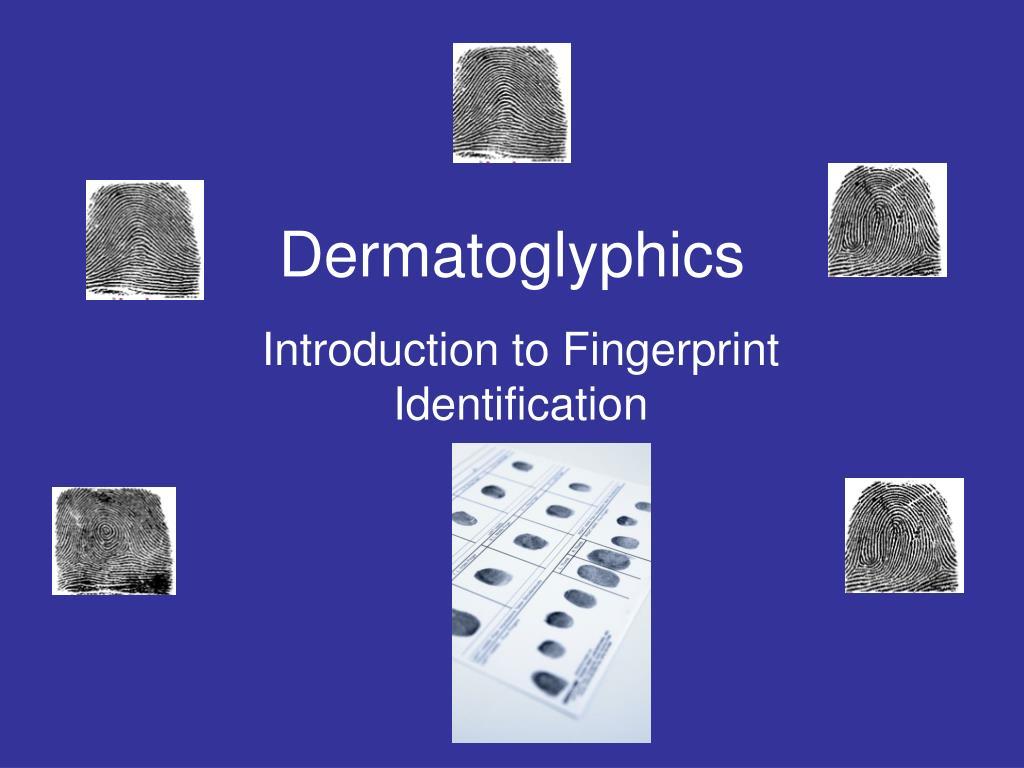 dermatoglyphics l.