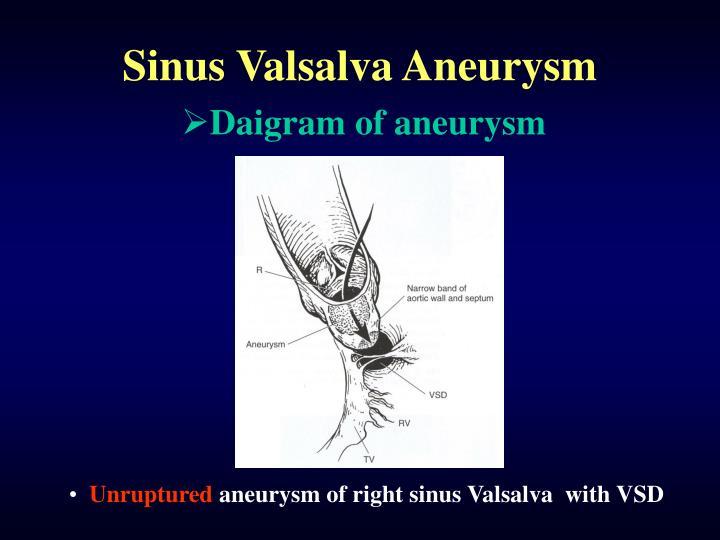 PPT - Sinus Valsalva Aneurysm PowerPoint Presentation - ID:517216