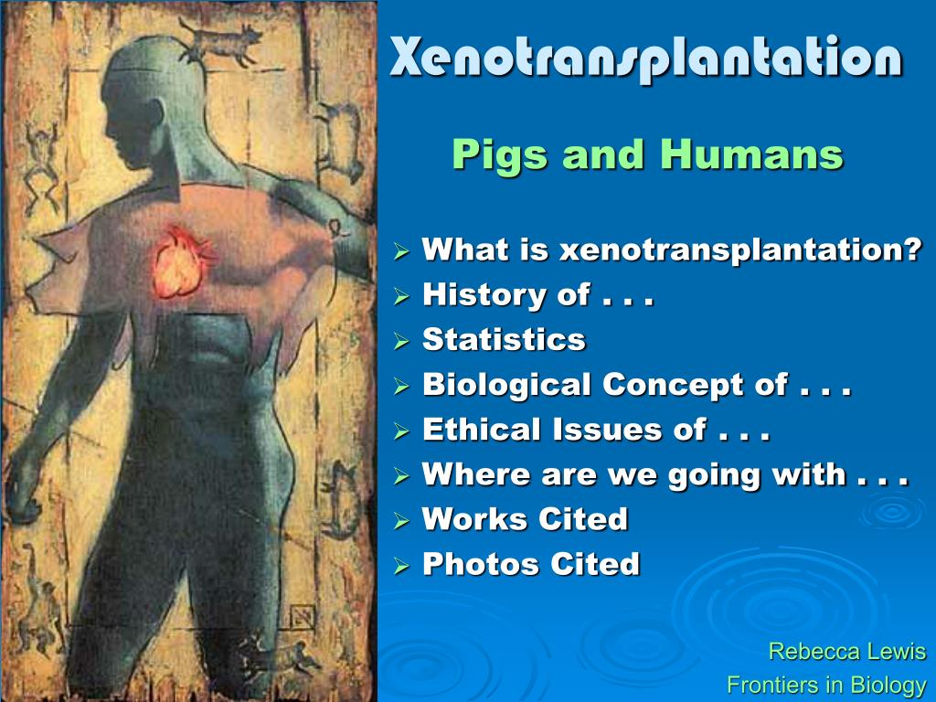 xenotransplantation l.