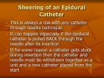 sheering of an epidural catheter