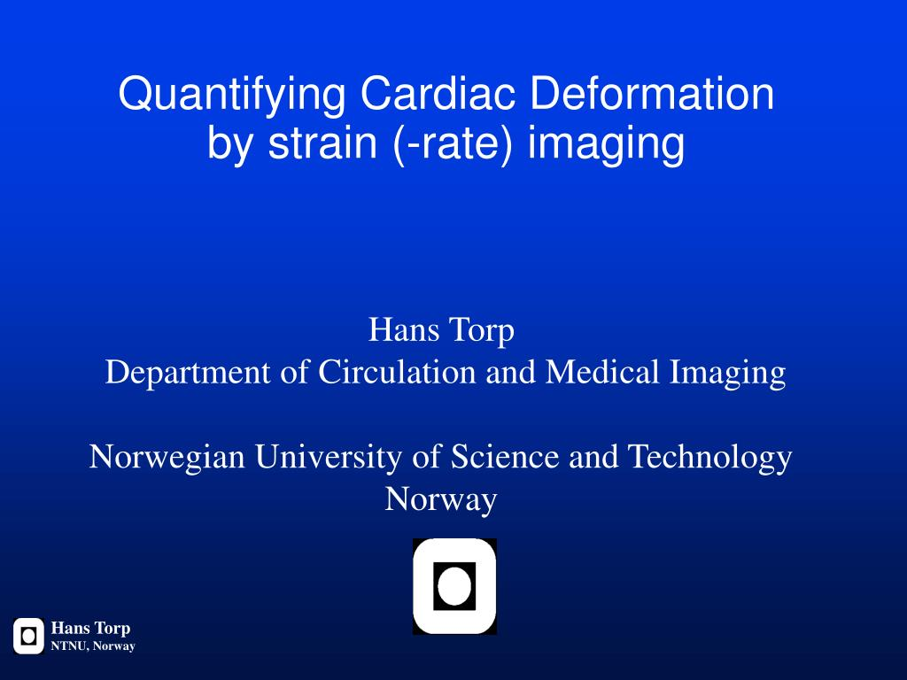 quantifying cardiac deformation by strain rate imaging l.