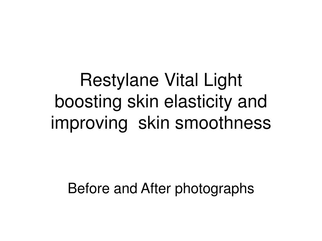 restylane vital light boosting skin elasticity and improving skin smoothness l.