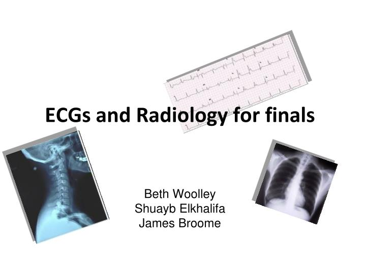 ecgs and radiology for finals beth woolley shuayb elkhalifa james broome n.