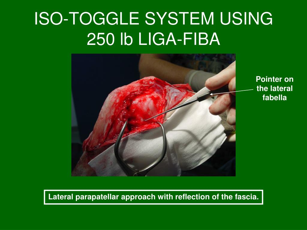 ISO-TOGGLE SYSTEM USING