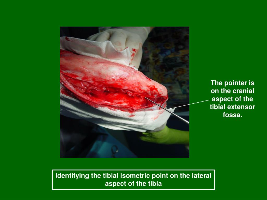 The pointer is on the cranial aspect of the tibial extensor fossa.