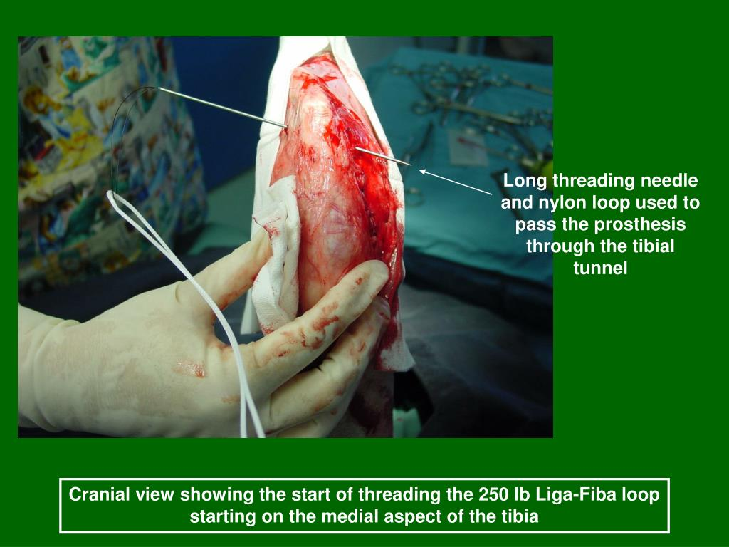 Long threading needle and nylon loop used to pass the prosthesis through the tibial tunnel