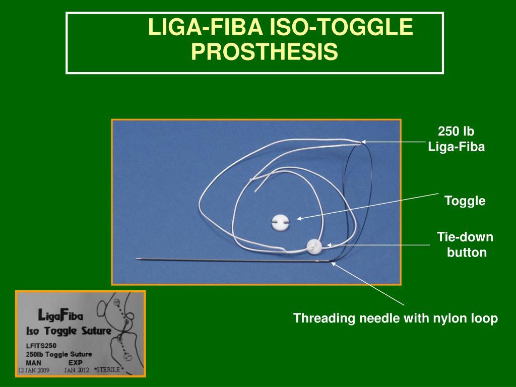 LIGA-FIBA ISO-TOGGLE PROSTHESIS