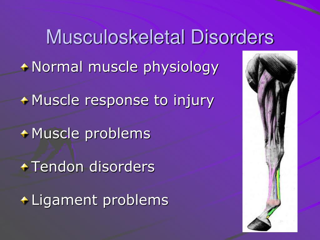 Research papers on ergonomics and musculoskeletal disorders