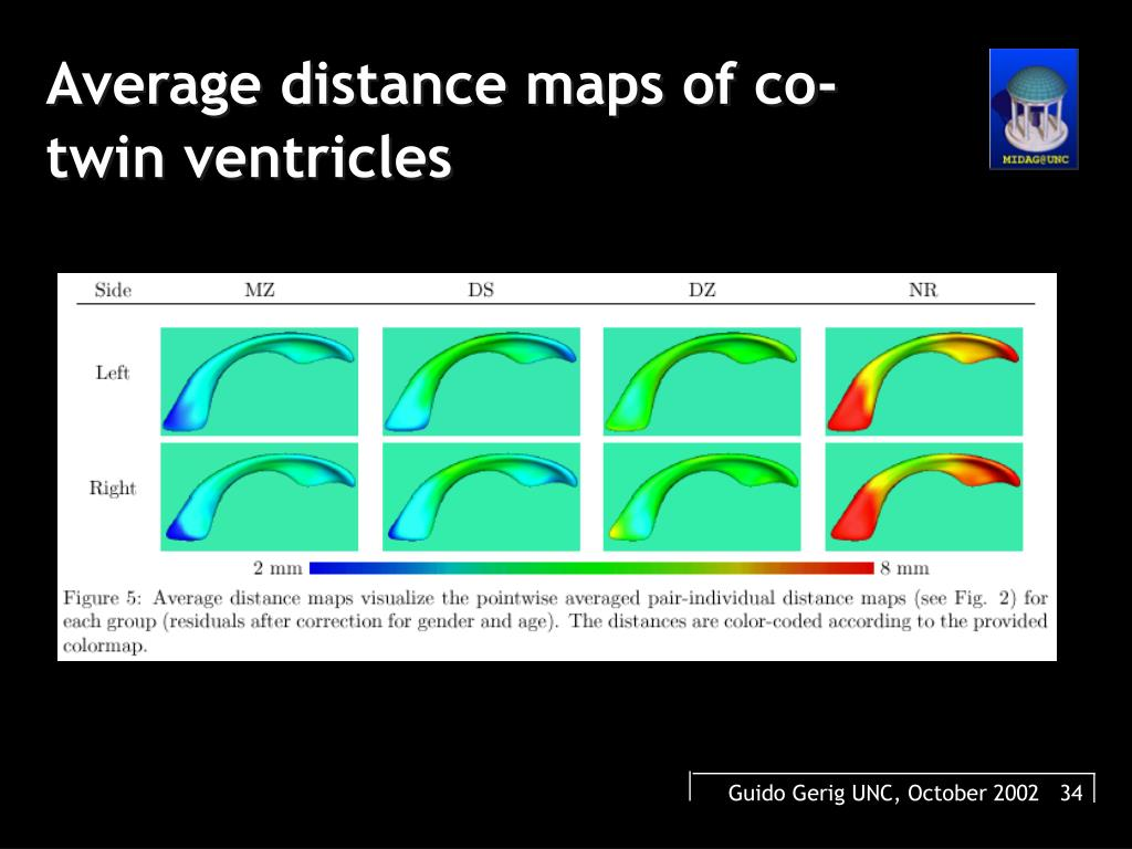 Average distance maps of co-twin ventricles