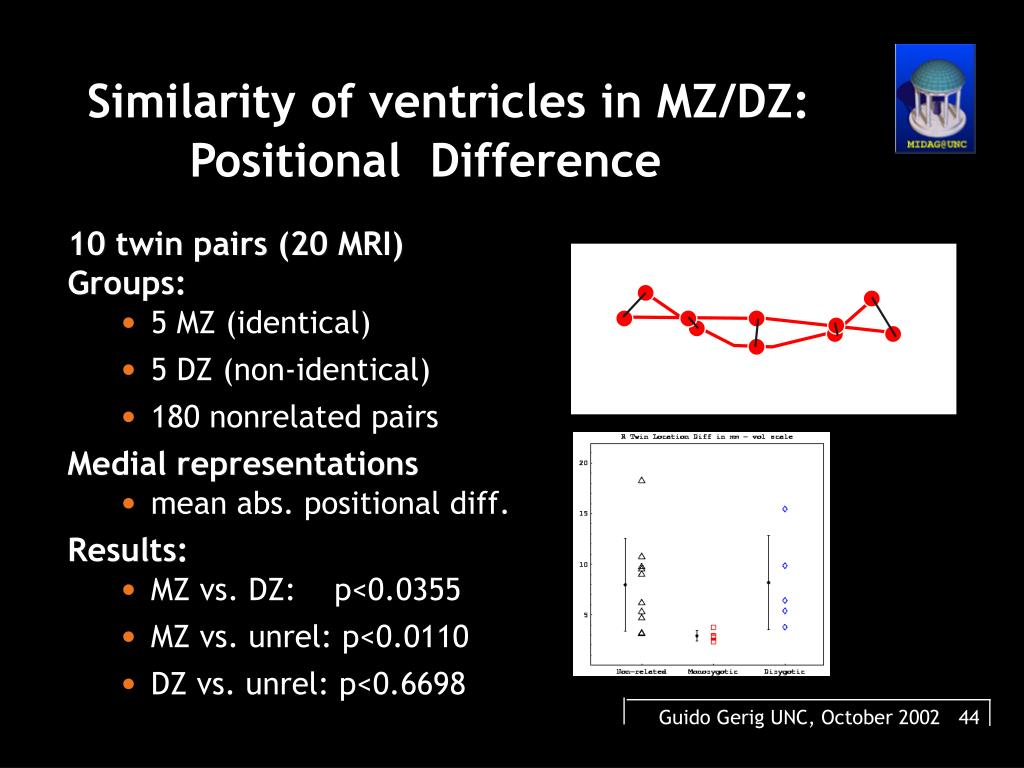 Similarity of ventricles in MZ/DZ: Positional  Difference