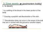 3 livor mortis