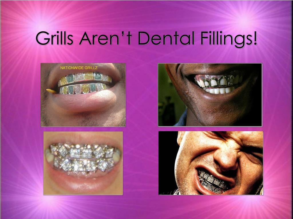 Grills Aren't Dental Fillings!