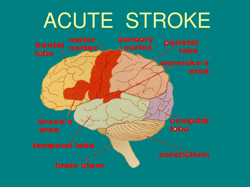 acute stroke l.